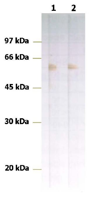 anti-Nucleoprotein antibody Testing Data image