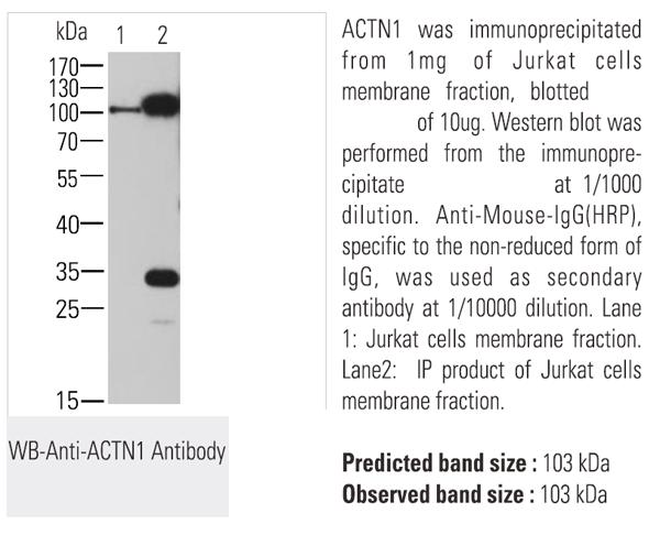 Immunoprecipitation (IP)