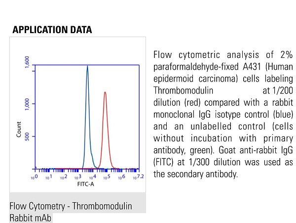 anti-THBD antibody | Rabbit anti-Human Thrombomodulin