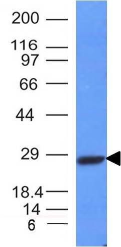 IGKC Antibody Western Blot (WB) (WB) Image
