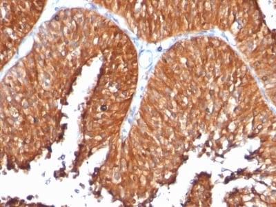 Immunohistochemistry (IHC) HSPD1.