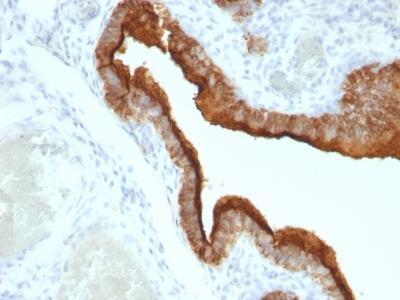 Immunohistochemistry (IHC) MUC1.