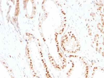 Immunohistochemistry (IHC) CLTA.