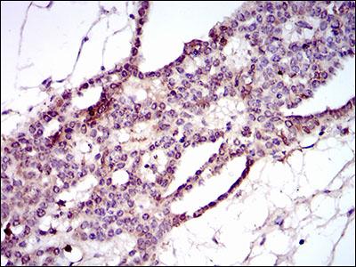 Immunohistochemistry (IHC) PIWIL4.