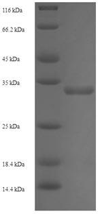 SDS-PAGE TXNDC12.