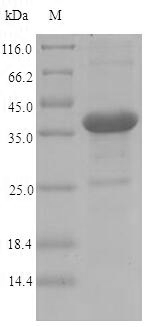 Invasin, partial recombinant protein SDS-Page image