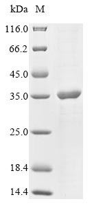 SDS-Page Outer capsid glycoprotein VP7.