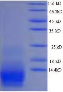 SDS-PAGE Delta-ctenitoxin-Pn1a.