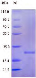 SDS-PAGE 21 kDa protein.