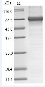 SDS-Page Toxin CfTX-1.