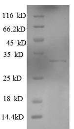 SDS-PAGE KLRG1.