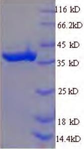 SDS-PAGE CDKB1-2.