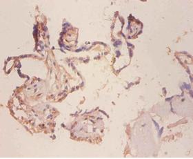 Immunohistochemistry (IHC) MUC18.
