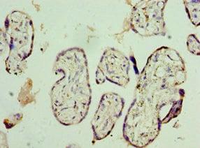 Immunohistochemistry (IHC) NVL.