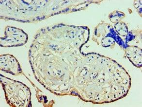 Immunohistochemistry (IHC) ANXA11.