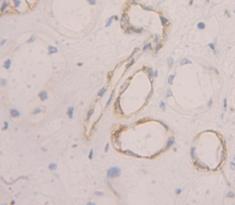 Immunohistochemistry (IHC) PMP22.