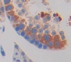 Immunohistochemistry (IHC) HSPA1L.