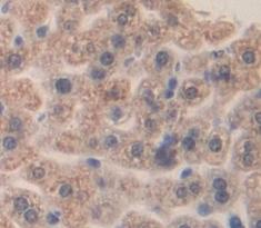 Immunohistochemistry (IHC) a2M.
