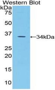 Immunohistochemistry (IHC) SPINK5.