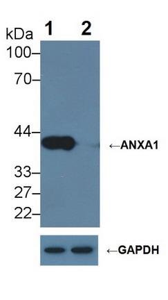 Testing Data ANXA1.
