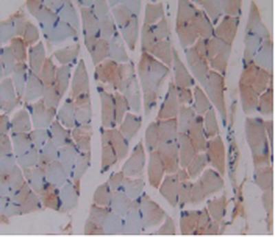 Immunohistochemistry (IHC) b2M.