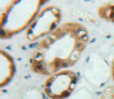Immunohistochemistry (IHC) FRS2.