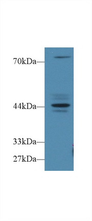 Probable fibrosin 1 Recombinant - Search Results - MyBioSource