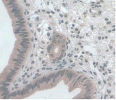 Immunohistochemistry (IHC) MCP1.