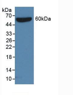 Western Blot (WB) S15 Oligopeptide (S).
