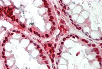 Immunohistochemistry (IHC) NAMPT.