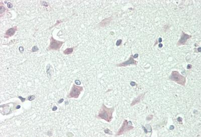 Immunohistochemistry (WB)