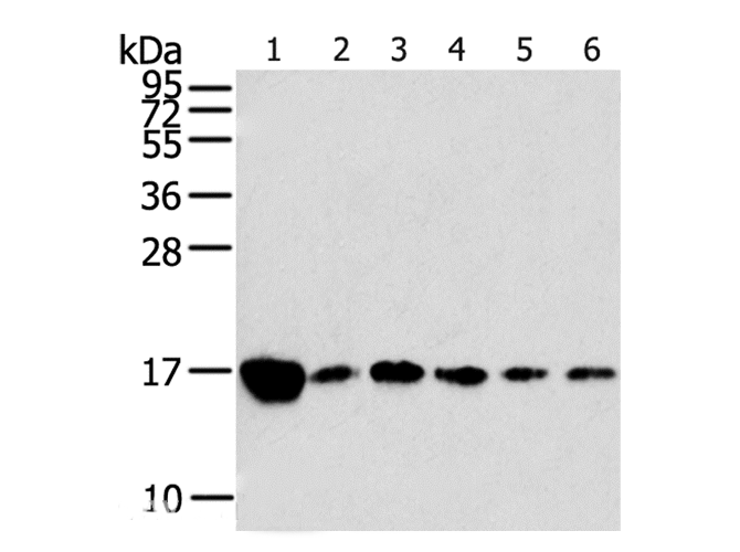 Rplp2 recombinant protein - Search Results - MyBioSource