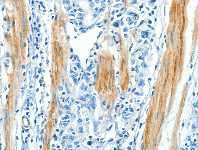 Immunohistochemistry (IHC) CAV3.