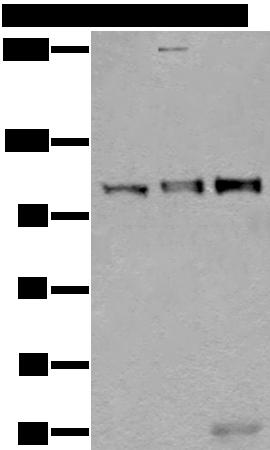 蛋白质印迹(WB)