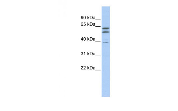 Western Blot (WB) Beta Tubulin 2A.