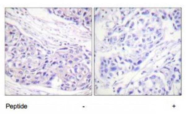 Immunohistochemistry (IHC) p90RSK.