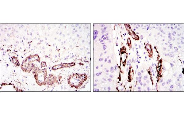 Immunohistochemistry (IHC) ACTA2.