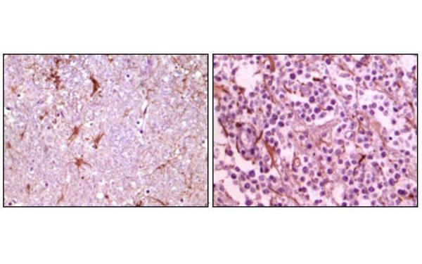 Immunohistochemistry (IHC) CIB1.