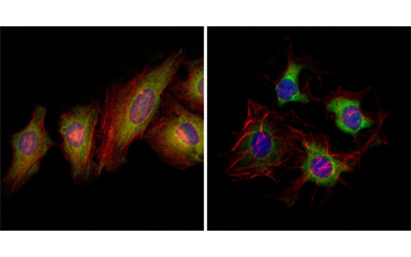Immunofluorescence (IF) EphB2.