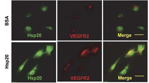 Immunofluorescence HSP20.