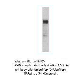 Western Blot (WB) TICAM2.