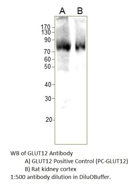 Western Blot (WB) GLUT12.