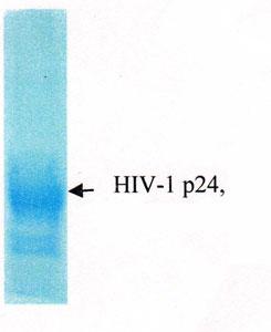 Testing Data TD HIV1 P24.