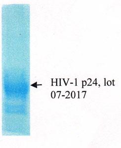 Western Blot HIV1 P24.