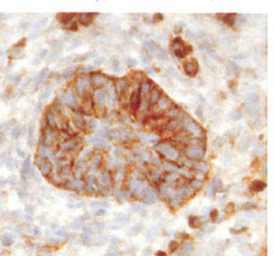 Immunohistochemical IHC