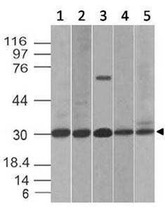 Western Blot(WB)Fig-4: Western blot analysis of B7-H4. Anti-B7-H4 antibody (Clone: ABM53A6) was used at 2 �g/ml on (1) HCT-116, (2) PC3, (3) Kato 111, (4) C2C12 and (5) RAW Lysates.