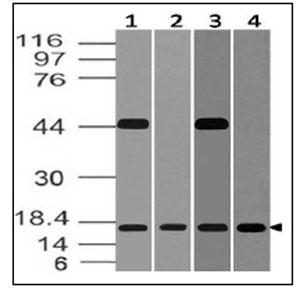 anti-BST2 antibody | Mouse BST 2 Monoclonal Antibody (Clone ABM52D8