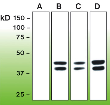 steroidogenic factor 1 genecard