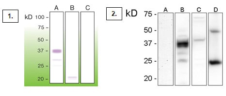 Western Blot (WB) PRION.
