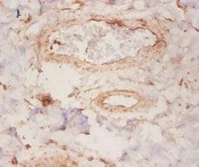 Immunohistochemistry (IHC) ARHGDIA.